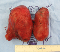 Thyroid Photo Gallery
