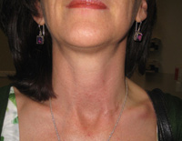 Parathyroid Photo Gallery